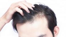 Alopecia- Causas e Tratamento da Queda Capilar